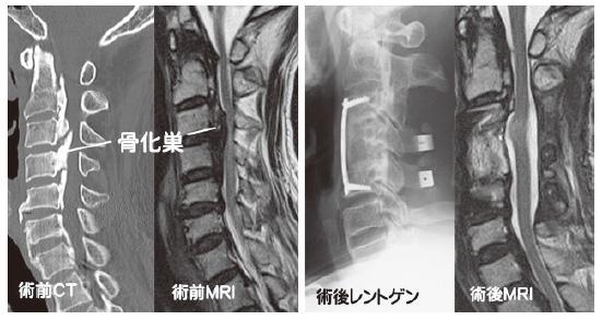 症 化 骨 後 靭帯 縦